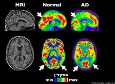 Marijuana Prevents Alzheimer's Disease, Major Researcher Suspects