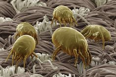 Dust mites foraging for human skin on a bedsheet.