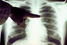 La tua diagnosi di cancro era sbagliata? Ogni giorno in Italia si scoprono 1.000 nuovi casi di cancro. Si stima che nel nostro Paese vi siano nel corso dell'anno 366.000 nuove diagnosi di tumore (esclusi i tumori della pelle, per i quali è prevista una classificazione a parte a causa della difficoltà di distinguere appieno …
