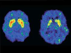 La mayoría de los estupefacientes son capaces de activar las zonas del cerebro del placer y la recompensa, y multiplicar por diez las sensaciones agradables.