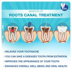 BENEFITS OF ✔ Relieves your ✔ You can save a diseased from extraction ✔ Improves the appearance of your tooth ✔ Enhances overall well-being and Oral Health, Dental Health, Root Canal Treatment, Nursing Tips, Dentistry, Decay, Clinic, Teeth, Roots