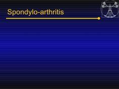 5spondyloarthropaties Seronegative Arthritis by Miami Dade via slideshare