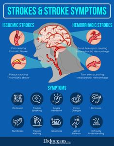 Cerebrovascular Disease: Causes, Symptoms & Solutions - DrJockers.com