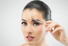 Remedies to Remove Old Scars