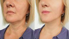 Recette de masque à la Maïzena avec effet botox pour les femmes de 30 et 40 ans Thyroid Nodule Symptoms, Thyroid Nodule Treatment, Thyroid Nodules, Botox Fillers, Dermal Fillers, Overactive Thyroid, Botox Cosmetic, Thin Lips, Botox Injections