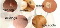Are you fed up with your skin problems? Do you want to get rid of skin tags, moles, warts, oil clogs, blackheads or age spots easily? Then you are just one step away because we bring the best solution or remedies related to more than 3000 skin problems. Mole Removal, Skin Tag Removal, Age Spot Removal, Beauty Care, Beauty Hacks, Beauty Tips, Get Rid Of Warts, At Home Spa, Essential Oils