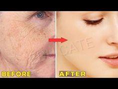 Turmeric Face Mask, Face Massage, Beauty Care, Ale, Detox, Youtube, Audi A6, Magnolia, Wax