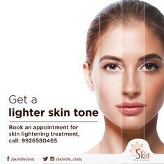 This summer shine bright like the sun. Visit Skinlife clinic for skin lightening treatment. to book an appointment. Star Beauty, Beauty Ad, Ash Blonde Balayage, Beauty Clinic, Skin Care Clinic, Cosmetic Design, Hair And Beauty Salon, Skin Care Treatments, Facial Care