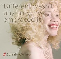 "The world said Diandra Forrest looked different. She said, ""No, world. I look amazing."" #LoveYourNature"