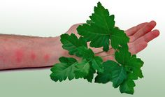 Treating Poison Ivy, poison oak and poison sumac. Rinse with COLD water immediately! Afterwards you can wash with warm water and soap. Wash clothes. Serious symptoms include swelling around eyes, throat, genital, large amounts of liquid oozing. Can take up to days for symptoms to appear.  http://www.sheknows.com/home-and-gardening/articles/804773/how-to-treat-and-avoid-poison-ivy-poison-oak-and-poison-sumac