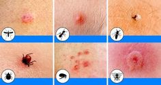 10 Bug Bites Anyone Should Be Able to Identify Summer: The season of picnics, baseball games, and ice cold lemonade. With so much outdoor time comes exposure to these common bug bites in North America. SEE DETAILS. Ant Bites, Spider Bites, Bug Bite Itch, Bites And Stings, Life Video, Varicose Veins, Easy Workouts, Good To Know, Helpful Hints