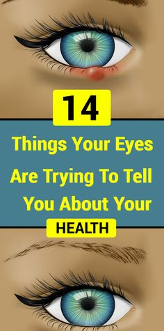 14 Things Your Eyes Are Trying To Tell You About Your Health - Health and Wellness Tips Herbal Remedies, Health Remedies, Home Remedies, Natural Remedies, Blackhead Remedies, Wellness Tips, Health And Wellness, Health Care, Tips