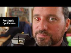 The Eyeborg: This Man Has A Prosthetic Eye Camera