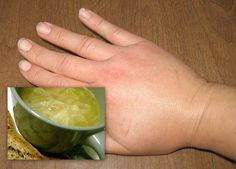 Combate la retención de líquidos en un mes