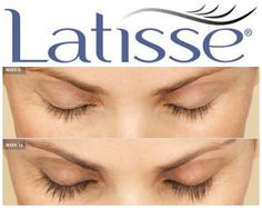 Latisse® is a prescription treatment to grow lashes longer, thicker and fuller.