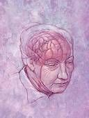 Alzheimers is a disease with seven stages. They don't happen sharply or over a specified period of time, everyone is different and everyone's progression may be different. One of the symptoms of Alzheimers is dementia.