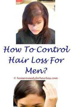 biotin shampoo cause hair loss - diffuse hair loss male treatment