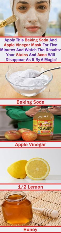 Apply This Baking Soda And Apple Vinegar Mask For 5 Minutes Daily And Watch The Results: Your Stains And Acne Will Disappear As If By A Magic!