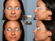 Nasenkorrektur ohne Op nur mit Hyaluronsäure Drop Earrings, Face, Drop Earring, Chandelier Earrings