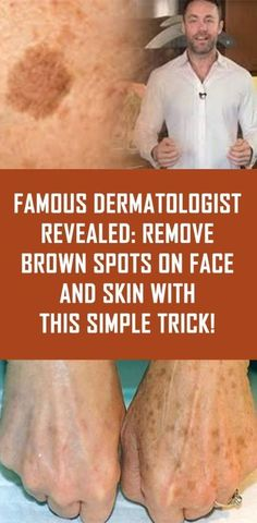 Famous Dermatologist Revealed: Remove Brown Spots On Face And Skin With This Simple Trick! Famous Dermatologist Revealed: Remove Brown Spots On Face And Skin With This Simple Trick! Beauty Care, Beauty Skin, Diy Beauty, Homemade Beauty, Face Beauty, Beauty Ideas, Hair And Beauty, Beauty Style, How To Get Rid