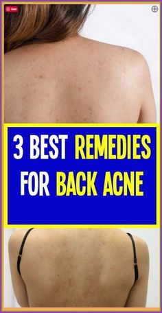 Back Acne � It is an absolutely embarrassing and uncomfortable skin problem. It is the acne that developed in the back of the body. It occurs when the pores of the skin or hair follicles become clogged due to the accumulation of excess sebum, dead skin and other impurities and, therefore, the bacteria will thrive � Back Acne Remedies, Natural Remedies, Herbal Remedies, Ear Health, Health Care, Health Tips, Brain Health, Tongue Health, Health Planner