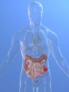 Want to comment about this, it is kind of weird to explain this to you. It is an example of ostomy with a stoma from small intestine protrude out little. You will need the kind of drainage bag to hold your waste come out of small intestine, and empty it out into toilet. Okay, I left this to your imaginary.