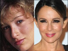 Jennifer Grey nose job plastic surgery before and after surgery photos