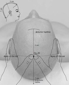 Hundred Convergences is a potent #acupressure point for earache#treatment that is widely used in traditional Chinese medicine. #acupuncturetreatment #AcupunctureUses