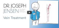 Vein Treatment   Varicose Veins   Spider Veins   Dr. Joseph Jensen, DO   Utah Surgeon https://www.youtube.com/watch?v=rrktOHjtz-k