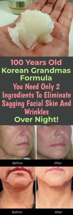 Korean Grandmas Formula You Need Only 2 Ingredients To Eliminate Sagging Facial Skin And Wrinkles Over Night! Korean Grandmas Formula You Need Only 2 Ingredients To Eliminate Sagging Facial Skin And Wrinkles Over Night! Beauty Care, Beauty Skin, Health And Beauty, Diy Beauty, Homemade Beauty, Healthy Beauty, Beauty Guide, Face Beauty, Beauty Box