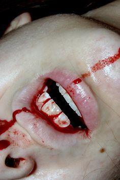 skateboard bleeding photography - Google Search