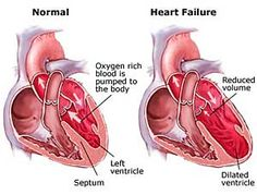 Cytokinetics, Amgen drug shows promise in heart failure study