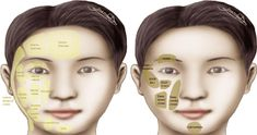 Figure 5.98 from The Art and Science of Filler Injection: Based on Clinical Anatomy and the Pinch Technique   Semantic Scholar Cosmetic Fillers, Facial Fillers, Botox Fillers, Plastic And Reconstructive Surgery, Plastic Surgery, Filler Injection, Surgery Journal, Hyaluronic Acid Fillers, Facial Proportions