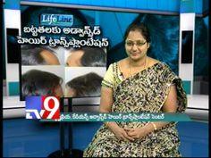 Advanced Hair Transplantation for Baldness - Life Line