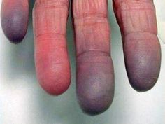 Poor Circulation in Fingers Causes, Symptoms and Treatment
