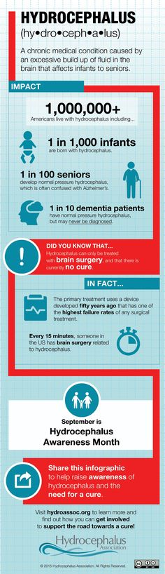 What is Hydrocephalus