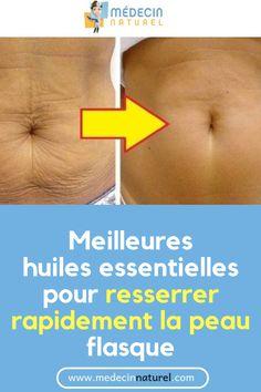 Meilleures huiles essentielles pour resserrer rapidement la peau flasque #peau #flasque #beauté #santé #huilesessentielles