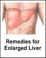 fatty liver | enlarged liver | pinterest | fatty liver, Skeleton