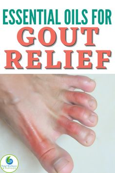 Essential Oils For Gout, Young Living Essential Oils, Essential Oil Blends, Gout Relief, Natural Pain Relief, Relaxing Oils, How To Cure Gout, Home Remedies Beauty, Gout Remedies