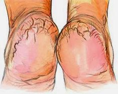 This includes several tips to care for cracked heels. Grind a handful of rice until u get a fine but coarse flour. Add a few spoons of raw honey to the mixture along with enough apple cider vinegar to obtain a thick paste. If the cracks are very deep, add a spoon of olive oil. Soak feet for 20 minutes gently massage with this paste.