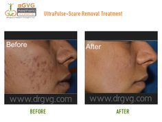 Scar Treatment in Bangalore