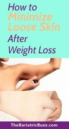Minimize Loose Skin after WLS with these tips! Bariatric | Weight Loss | WLS | Gastric Bypass | RNY | VGS | Lapband | Diet | Loose skin | Exercise | Motivation | Obesity | BariMelts #HealthyFoodsToLoseWeight #ItchySkinAndRedBumps #MyCatHasAReallySaggyStomach