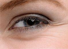 Remédios para as bolsas na aérea dos olhos e o pés de galinha