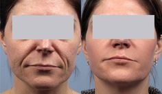 Before and After SpectraLift Non Surgical Laser Facelift Laser Face Lift, Mini Face Lift, Facelift Without Surgery, Non Surgical Facelift, Neck Lift, Skin Resurfacing, Facial Rejuvenation, Skin Treatments, Face Art