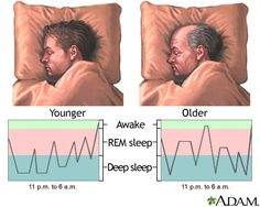 Sleep patterns in the young and aged: MedlinePlus Medical Encyclopedia ...