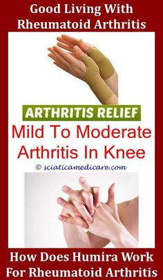 71 Best Knee Arthritis And Replacement Images On Pinterest