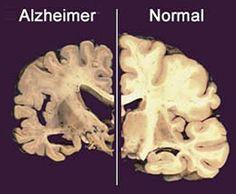 Alzheimer: diagnóstico precoce é o melhor remédio