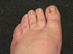 Toenail fungus is usually characterized by swelling and inflammation as well as yellowish, crumbling nails. There are many factors that can contribute to nail fungus such as poor hygiene, abnormal pH levels of the skin, constant exposure to moisture, and compromised immune system among others. Most of the time, toenail fungus is treated with anti-fungal …