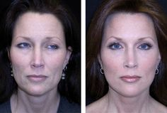 Plastic Surgery Information: Plastic surgery : Proper treatment and care