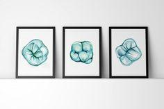 Vista oclusal del Molar imprimir arte acuarela Set impresión